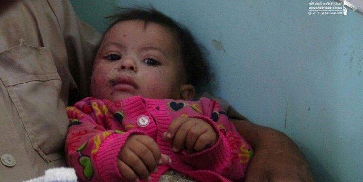 این دختر 9 ماهه اشک کاربران مجازی را درآورد، عکس