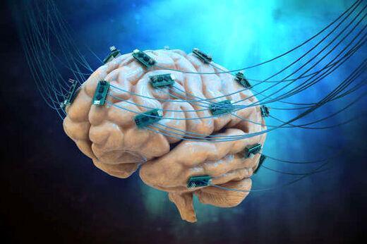 بیماران سکته مغزی این واکسن کرونا را تزریق نمایند
